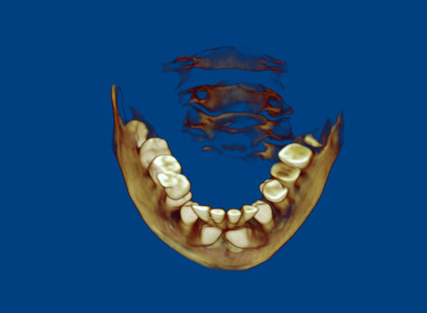 3D-Lower-Occlusal-C13-lg